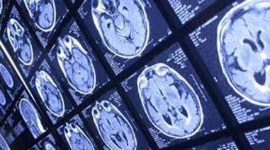 Multiple Brains